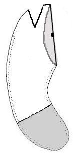 ALTERATIONS-to-regular-arm-.jpg